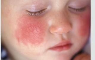 eczema and earthing